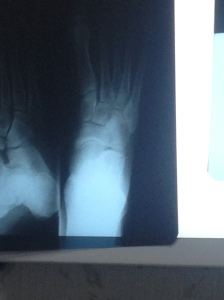 At least my xrays said no broken bones.  (We weren't surprised but it's good to rule that out)
