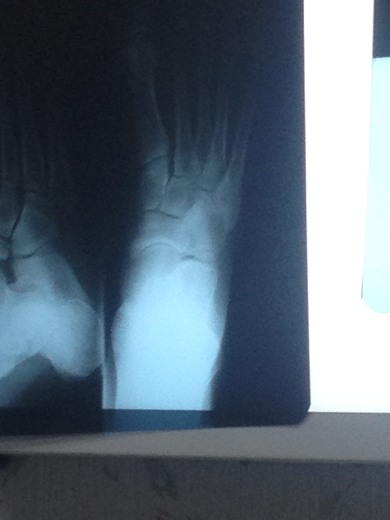 September 27, 2012 when I realized the cyst in my foot had caused the muscle to rip off my bone.